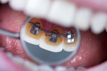 22631640 - invisible lingual braces on dental mirror